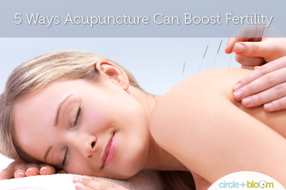 5 Ways Acupuncture Can Boost Fertility
