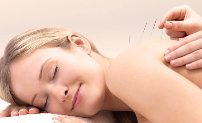 5 Key Secrets to Successful Acupuncture
